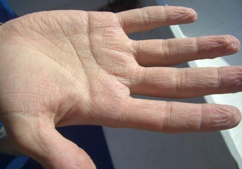 Shriveled-Up Mummy Hand